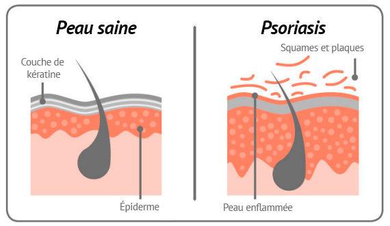 psori skin fr