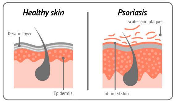 psoriasis skin en